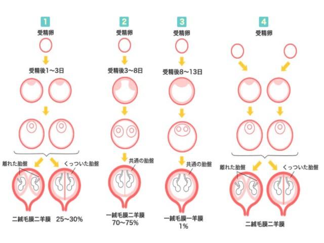 【妊娠初期レポ③】一絨毛膜一羊膜と診断直後の心境と夫婦の意思確認